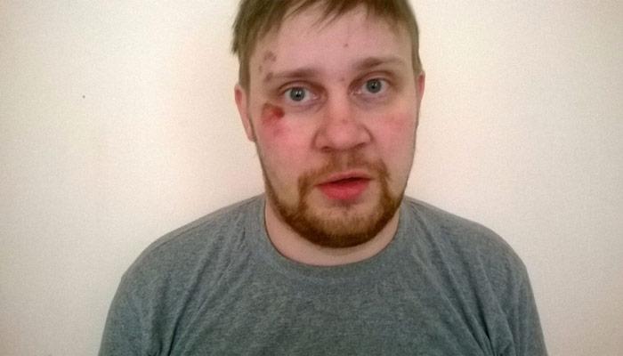 Un journaliste russe victime d'un enlèvement en Ukraine ?