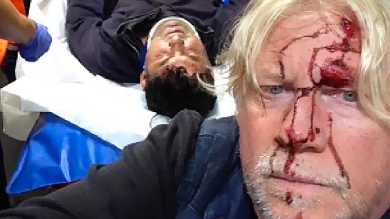 Calais : Trois journalistes anglais violemment attaqués par des clandestins